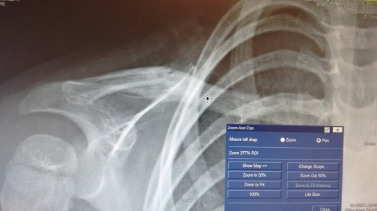 final X-ray on the mend